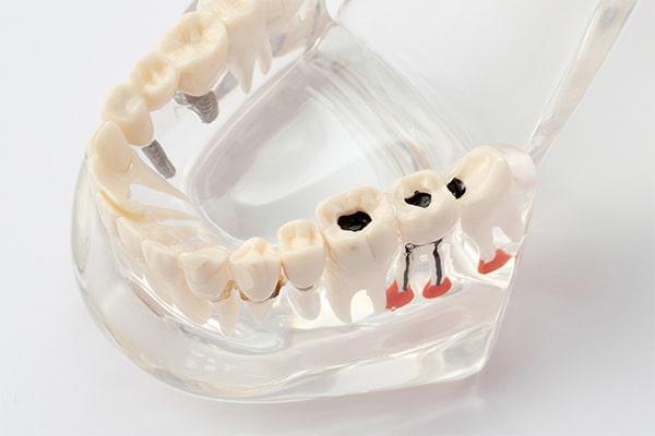 虫歯になりやすい場所