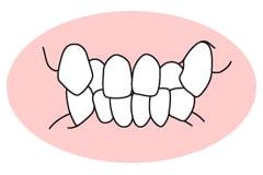 歯並びが悪いと